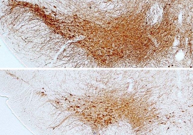 Imagen de las neuronas dopaminérgicas de la sustancia negra del cerebro.
