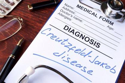 Los investigadores encuentran un nuevo tratamiento potencial para las enfermedades priónicas