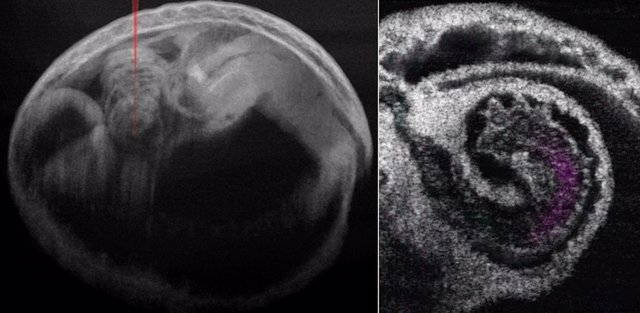 Embrión de ratón y corazón con flujo de sangre