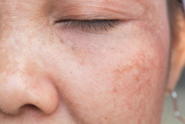Melasma, pigmentación de la piel, láser en Dermatología