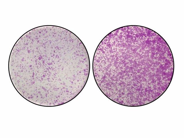 """En la izquierda, se observan células del colon con niveles normales de TYW2 y la pieza """"Y"""". En la derecha, cuando sucede la perdida de TYW2 y el nucleótido """"Y"""", las células del cáncer de colon empiezan a migrar de forma descontrolada"""