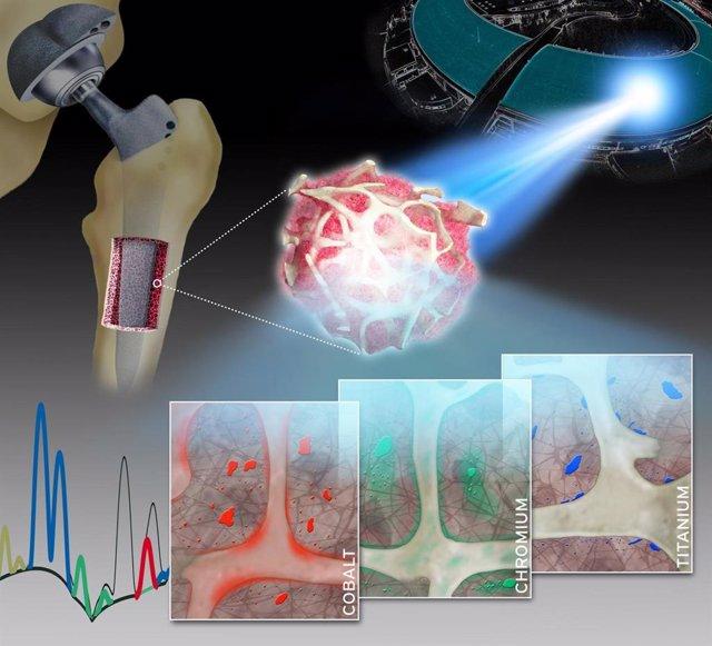 Patrones de distribución característicos de metales específicos (cobalto, cromo y titanio) liberados de los implantes de artroplastia de rodilla y cadera.
