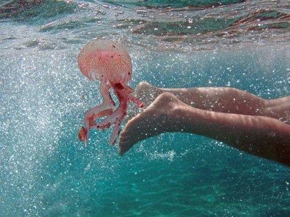 ¿Pis para las picaduras de medusa?¡¡No!! Esto es lo que debes saber para tratarlas