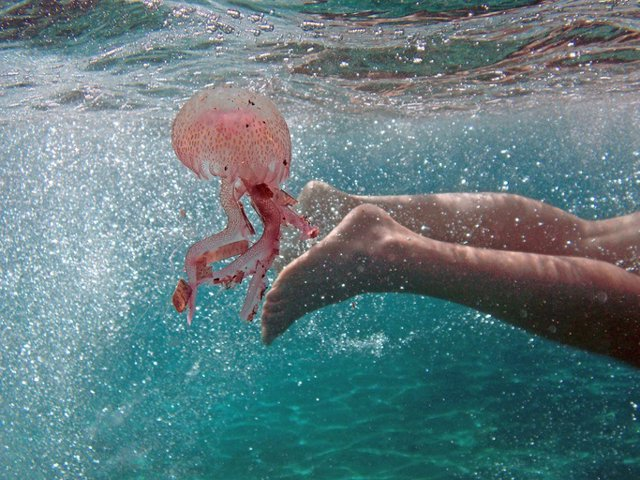 A boy and jellyfish swimming in the sea    Italian boy swimming in the sea accidentally touches a jellyfish