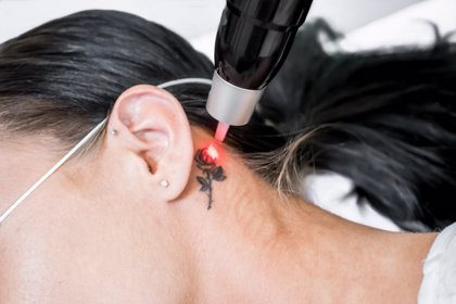 Todo lo que tienes que saber si te quieres quitar un tatuaje: qué posibilidades tienes