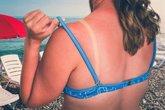 Foto: Qué hacer cuando nos quemamos: ¿Aloe vera? ¿After Sun? ¿Una buena hidratante?