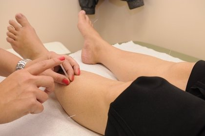 Investigan el uso de acupuntura para controlar la tormenta de citoquinas