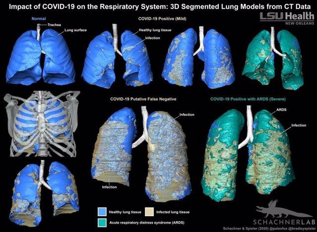 Los modelos 3D son un método sorprendentemente claro para evaluar visualmente la distribución de la infección relacionada con COVID-19 en el sistema respiratorio.
