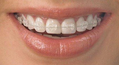 Cómo cuidar correctamente la ortodoncia invisible durante el verano