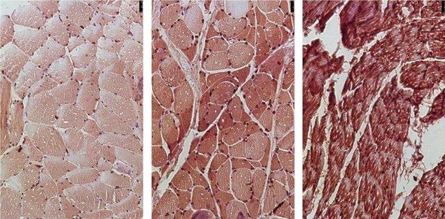 Las muestras de tejido muscular de pacientes con cáncer de páncreas muestran que el aumento de los niveles de la enzima NOX4 (rojo) se correlaciona con el aumento de los niveles de degeneración muscular.