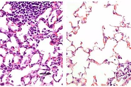 Una vacuna nasal contra el COVID-19 previene la infección en ratones