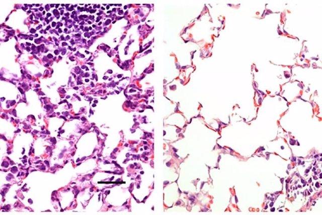 A la izquierda, tejido pulmonar de un ratón que recibió una vacuna de control que no produjo ningún efecto protector. Muestra un gran número de células inflamatorias. A la derecha, tejido pulmonar de un ratón que recibió una vacuna nasal