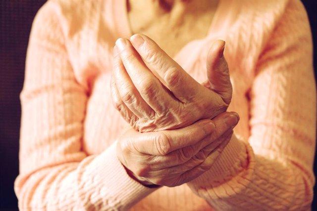 Manos de una mujer mayor, dolor, inflamación.