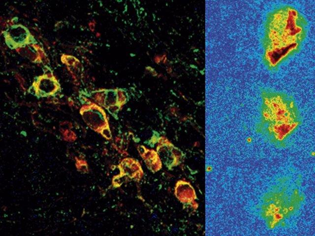 Neuronas dopaminérgicas expresando la forma humana de alfa-sinucleína vistas por microscopia confocal (izq) y reducción progresiva de la expresión de alfa-sinucleína después del tratamiento (dcha)