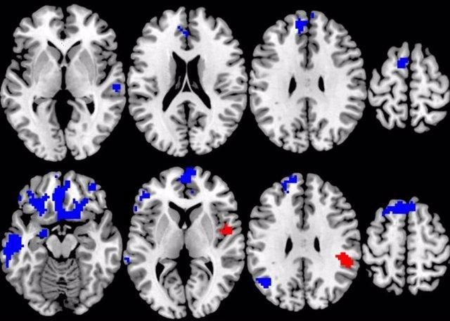 Una compilación de imágenes cerebrales del estudio de la respuesta al tratamiento del trastorno obsesivo-compulsivo y su correlación con la activación durante las tareas de procesamiento cognitivo y de recompensa.