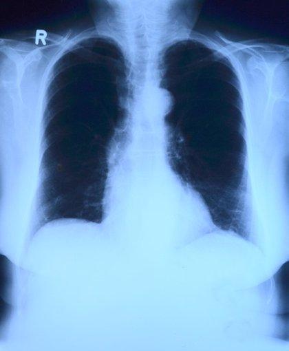 La bronquitis en la infancia predice una peor salud pulmonar en la mediana edad