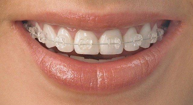 El 25% de los adultos jóvenes de entre 35 y 45 años necesitan ortodoncia