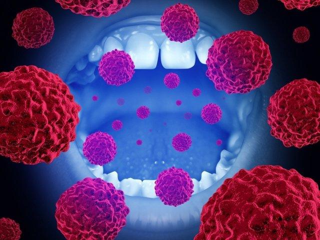 Cancer oral.