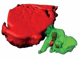 Reconstrucción de un macrófago (en verde) que ha captado material procedente de un cardiomiocito (en rojo) a través de las partículas identificadas en este estudio (exoferas).