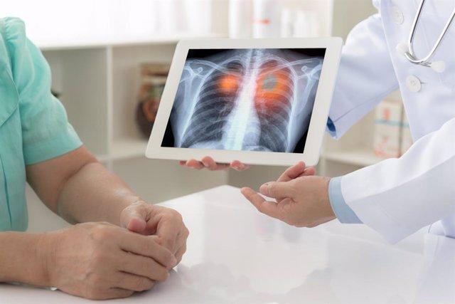 Consulta médica sobre cáncer de pulmón, médico y paciente.