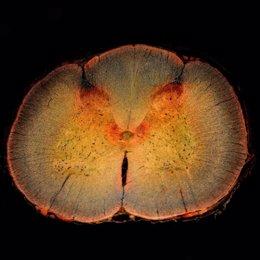 Descubren un nuevo camino hacia la regeneración neuronal después de una lesión d
