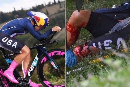 Chloé Dygert asegura que volverá a competir pronto tras su accidente en Imola