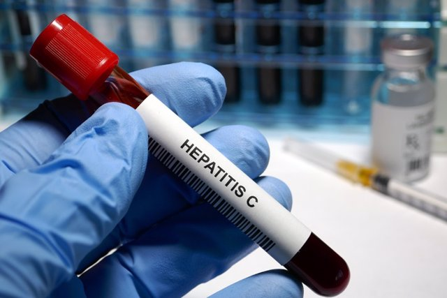 Hepatitis C treatment  Hepatitis C - sexually transmitted disease blood test and treatment