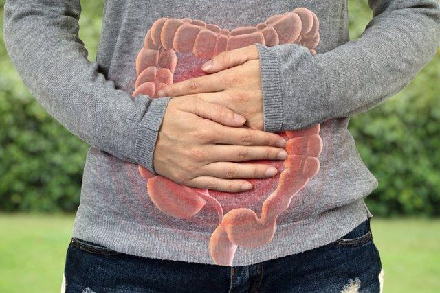 Enfermedad Inflamatoria Intestinal. Enfermedad de Crohn y Colitis Ulcerosa.