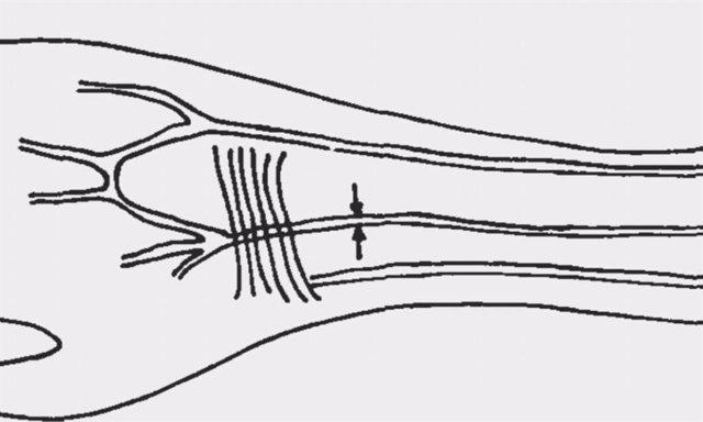 Descripción de la arteria mediana en el antebrazo
