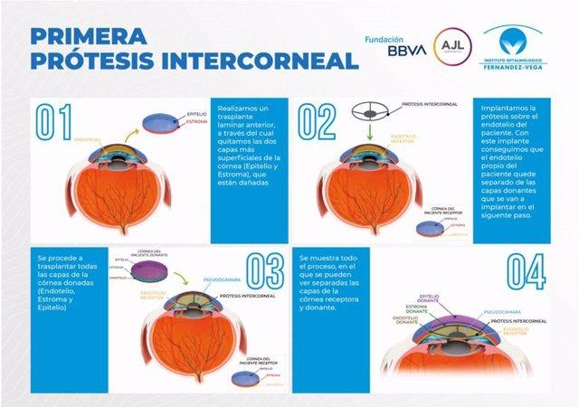 El Instituto Oftalmológico Fernández-Vega desarrolla la primera prótesis corneal que se implanta sin necesidad de realizar un trasplante penetrante