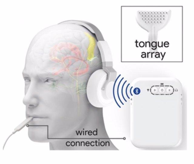 Un esquema que muestra el dispositivo de neuromodulación bimodal. Los auriculares inalámbricos emitían sonidos, mientras que una pequeña guía de electrodos estimulaba la lengua con diferentes patrones