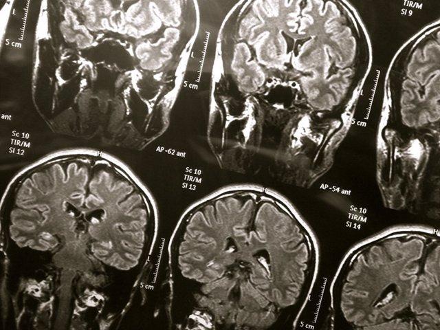 Nuevo método rápido para diagnosticar conmociones cerebrales en atletas jóvenes