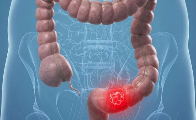 Los retrasos en la detección del cáncer colorrectal debido al COVID causan un au