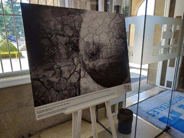 Un imagen de las que componen la exposición itinerante que acogerán el HM Sanchinarro y el HM Montepríncipe.