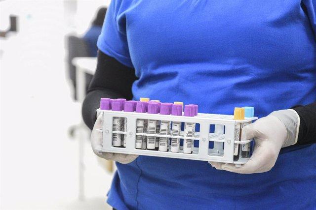 Coronavirus.- Chile informa de casi 1.700 nuevos casos de coronavirus y supera l