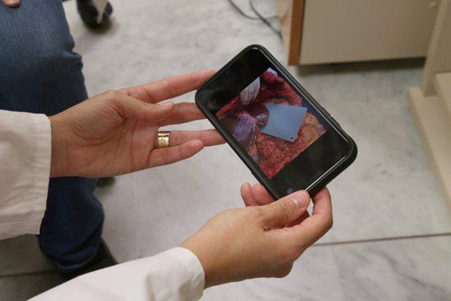 Pla detall de l'eina d'intel·ligència artificial Livercolor, desenvolupada per Vall d'Hebron i la Universitat Pompeu Fabra: utilitza fotografies del fetge per determinar-ne els nivells de greix i saber si es pot trasplantar. Publicada el 21/10/20 (H)