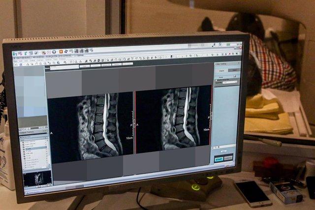 Radiografía de un paciente realizada en el Centro Médico Somosaguas donde realizan tests en sangre a pacientes que quieren saber si están o no infectados por Covid-19 , ubicado en Pozuelo de Alarcón, Madrid, (España), a 5 de mayo de 2020.
