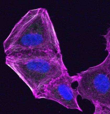 La primera inmunoterapia española completa su primera fase de investigación en pacientes con cáncer resistente