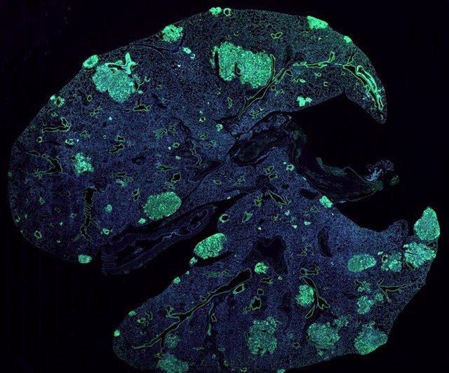 Pulmón de ratón con metástasis (verde) formado por células cancerosas que se diseminan desde un tumor de mama primario.