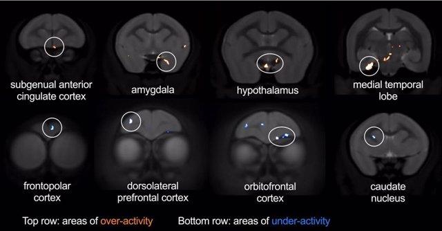 Imágenes del cerebro para explorar otras regiones cerebrales afectadas por la sobreactividad del CCA durante una amenaza.