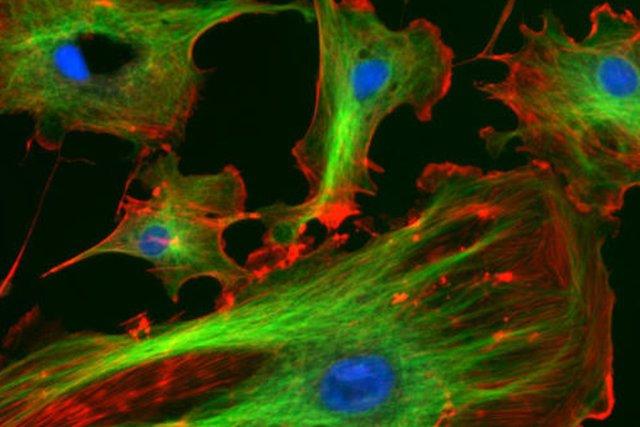 Magen al microscopio óptico del citoesqueleto de las células endoteliales de un vaso sanguíneo. /