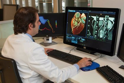 La Clínica Universidad de Navarra lanza un chequeo cardiovascular para medir el riesgo de ictus y de infarto
