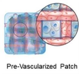 Un parche de células cardíacas combina una red de vasos sanguíneos (rojo) con células estromales cardíacas humanas (azul) en una matriz de fibrina tridimensional, como se ve en la interpretación de este artista.