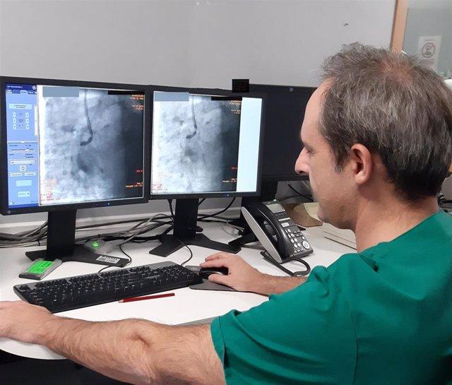 En la imagen se aprecia una estenosis -estrechamiento- arterial que impide el flujo sanguíneo