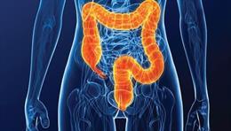 Imagen colon