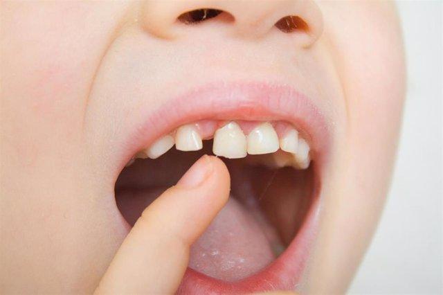 Dientes de leche, dientes de niño, boca de niño