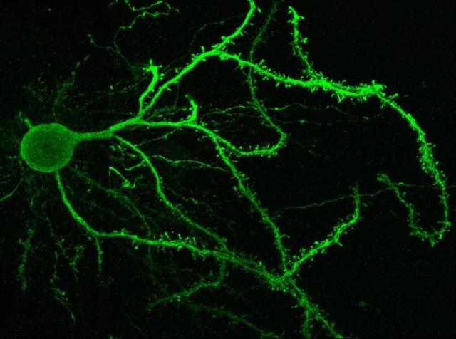 Imagen de una neurona estriatal de la vía directa.