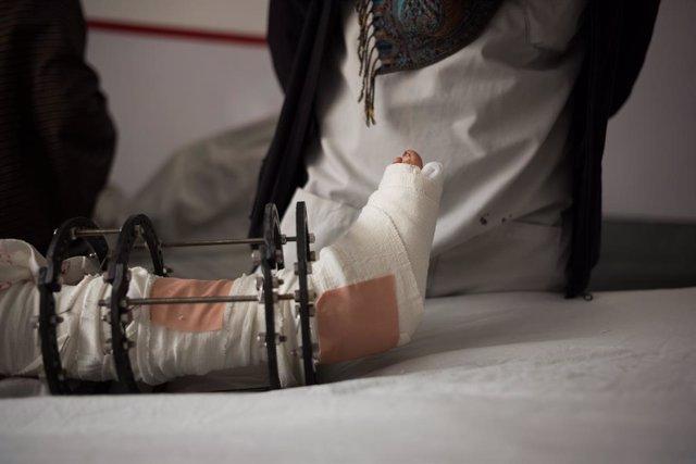 Un niño herido a causa de la explosión de una bomba en Afganistán