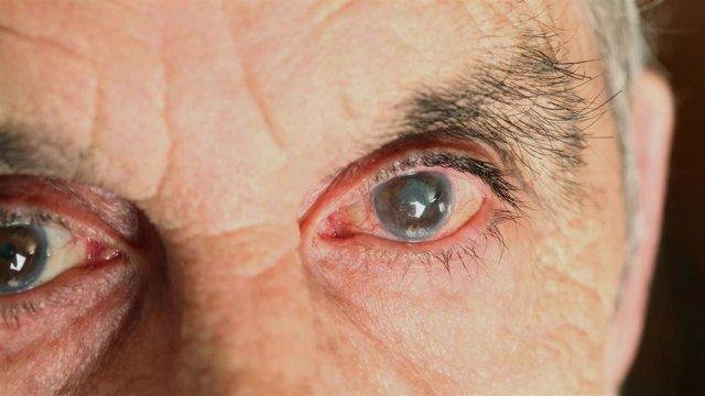 Cataratas, Oftalmología, Anciano, Ojos.