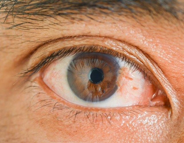 """El pterigium o pterigion, conocido popularmente como o """"palmera"""", es un problema ocular bastante frecuente."""